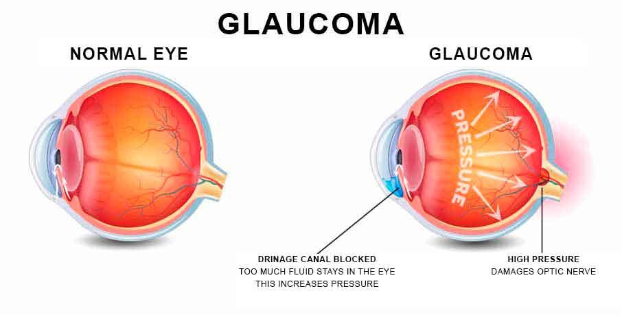 Glaucoma Cannabis