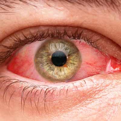 Red eyes smoking cannabis