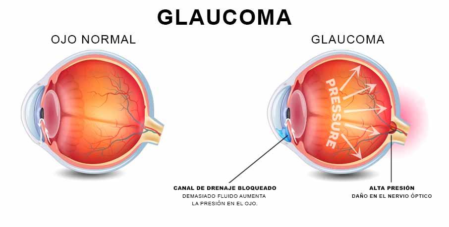 Glaucoma marihuana