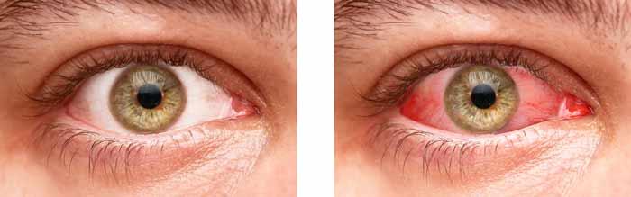 Ojos rojos fumar marihuana