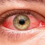 Ojos rojos al fumar marihuana